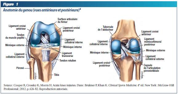 Genoux remplacement du genou douleur de genou for Douleur sur le cote exterieur du genou