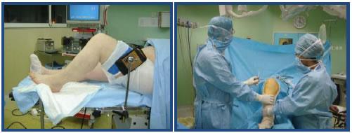 durée itt suite suture doigt