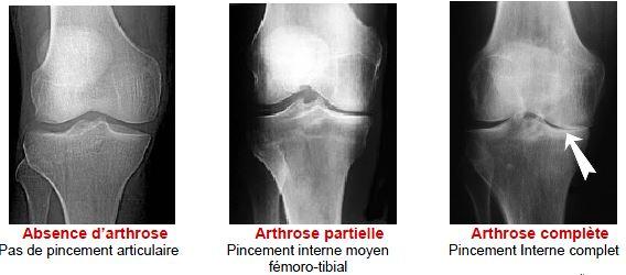 comment reconna tre l 39 arthrose de genou douleur genou. Black Bedroom Furniture Sets. Home Design Ideas