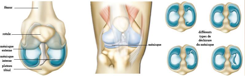choc genou douleur rotule après 1 semaine