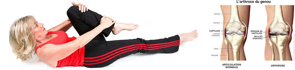 Exercices Arthrose Genou : Arthrose Genou | Douleur de Genou