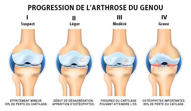 mal aux genoux arthrose